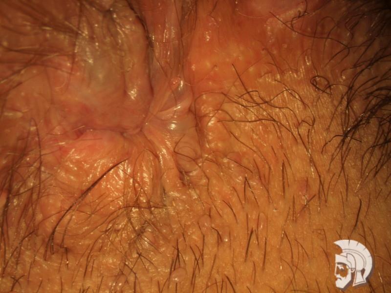 Фото геморроя у мужчин. Начальная стадия расширения геморроидальных вен