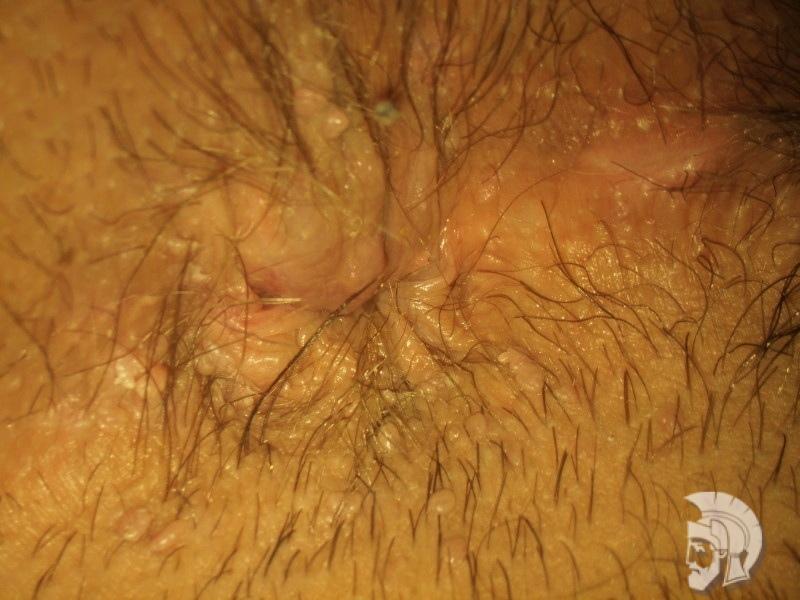 Фото папилломы у мужчин. Множественные папилломы в области анального отверстия