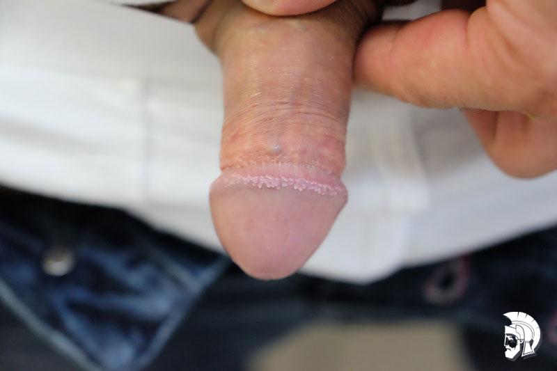Фото кондиломы у мужчин. Множественные кондиломы головки полового члена