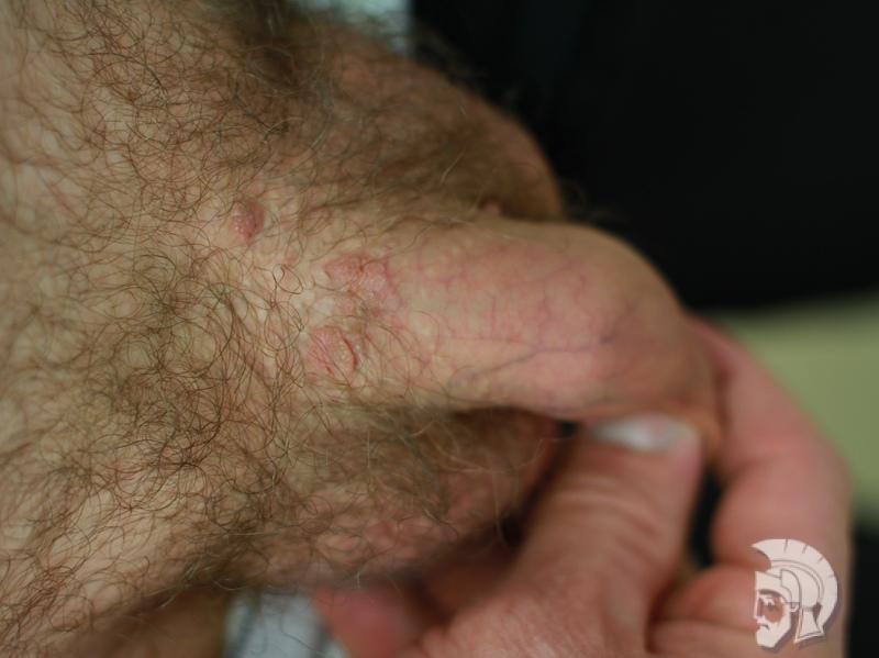 Фото кондиломы у мужчин. Кондиломы полового члена